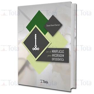 Livro Uso De Miniplacas Para Ancoragem Ortodôntica - Sverzut - Tota